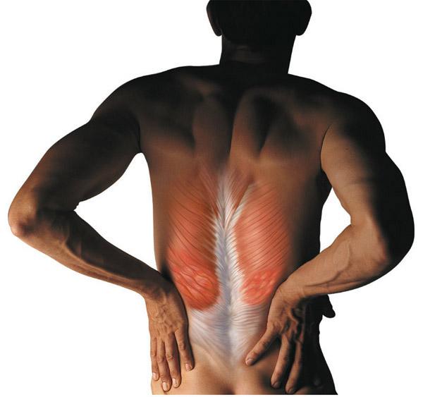 Что следует делать при травмах мышц