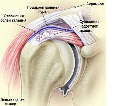 травма мышцы